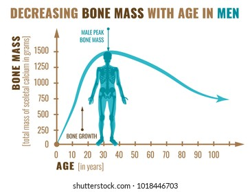 Decreasing bone mass with age in men. Detailed infographic in beige, brown and blue colors isolated on a white background. Vector illustration. Healthcare and medicine concept.