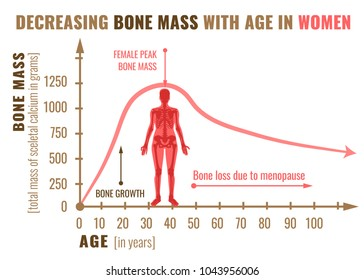 Decreasing bone mass with age in women. Detailed infographic in beige, brown and pink colors isolated on a white background. Vector illustration. Healthcare and medicine concept.