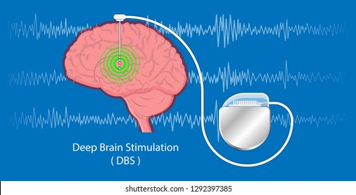 deep brain stimulation DBS Parkinson's disease (PD)