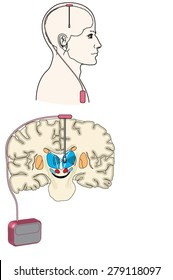 Deep brain stimulation using an implanted pulse generator, especially as it relates to Parkinson's disease. Created in Adobe Illustrator. EPS 10.