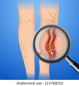 Deep Vein Thrombosis on Leg illustration