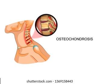 degenerative disc disease and neck pain