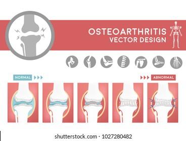 degenerative of osteoarthritis flat cartoon vector design, sequencing of damage joint from arthritis