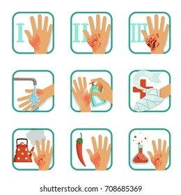 Degree burns set, burns treatment and classification vector Illustrations