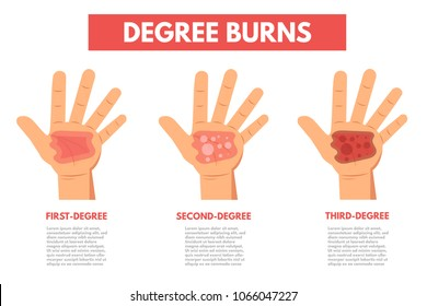 First Degree Burn Images, Stock Photos & Vectors | Shutterstock