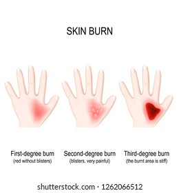 Second-degree Burn Images, Stock Photos & Vectors | Shutterstock