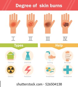 Degree of skin burns. Vector. Cartoon. Isolated. Flat. Illustration for websites, brochures, magazines.