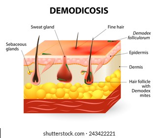 demodicosis. Demodex mite also known as face mites. Demodex folliculorum is a type of skin mite that lives in hair follicles. parasitic mites affecting animals and humans.