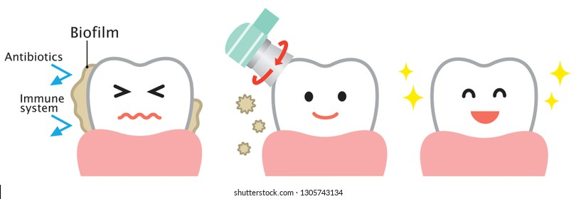 dental biofilm removal cute cartoon illustration. dental health and oral care concept
