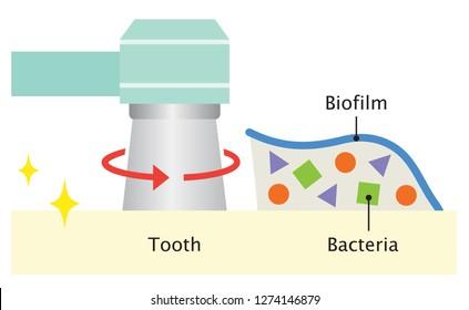 dental biofilm removal illustration. dental health and oral care concept