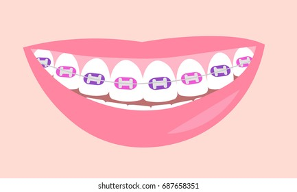 Dental Braces. Smiling white teeth and pink lips. Ceramic braces. Colors braces. Smile With Braces.