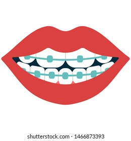 Dental braces vector cartoon illustration isolated on a white background.