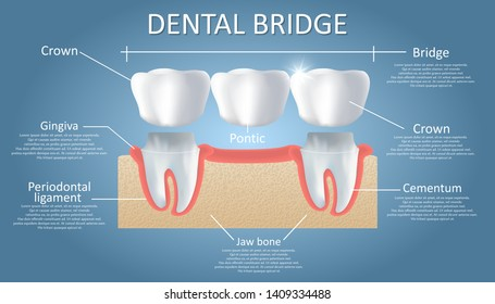 Dental bridge diagram. Vector educational poster, medical infographic. Traditional bridge consists of one artificial tooth and is held in place by dental crowns. Fixed dental restoration.