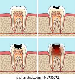 Dental caries stages. Cross section tooth anatomy and damage.  Vector illustration