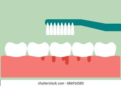 dental cartoon vector, brushing teeth with bleeding on gum and tooth concept gingivitis or scurvy, flat style