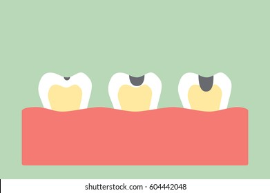 dental cartoon vector, stages of tooth decay