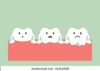 dental cartoon vector, step of gum disease - healthy teeth, gingivitis and periodontitis