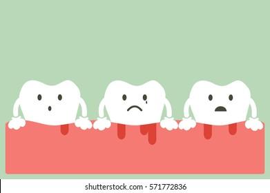 dental cartoon vector, unhealthy teeth because gingivitis and bleeding