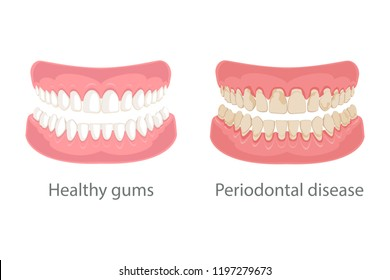 Dental concept, gum treatment. Gum disease and teeth, periodontal disease. Gum disease, bleeding gums, unhealthy teeth, yellow teeth, bad teeth. Vector illustration.