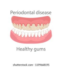 Dental concept, gum treatment. Gum disease and teeth, periodontal disease. Gum disease, bleeding gums, unhealthy teeth, yellow teeth, bad teeth. Vector illustration.