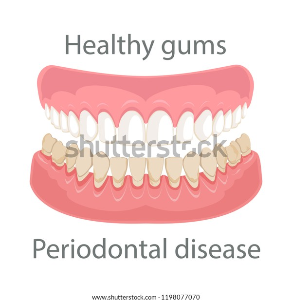 Dental Concept Gum Treatment Gum Disease Stock Vector