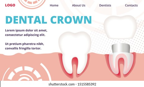 Dental Crown Horizontal Banner. Tooth Restoration and Crown Installation Procedure in Human Cavity. Stomatology and Dentistry Health Care and Medical Treatment Service Cartoon Flat Vector Illustration