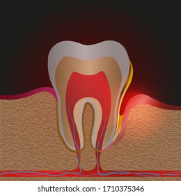 dental disease with pain and inflammation. Medical illustration of tooth root inflammation, Gum disease, pus in the gum pocket, plaque and dental calculus. Periodontitis, Periodontitis, gingivitis