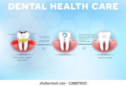 Dental health care tips, how to prevent tooth decay formation and acid attack detailed diagram