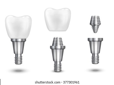 Dental and health tooth implant. Vector illustration