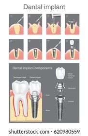 Dental implant is an artificial tooth root that is placed into your jaw to hold a replacement tooth or bridge. Vector graphic design.