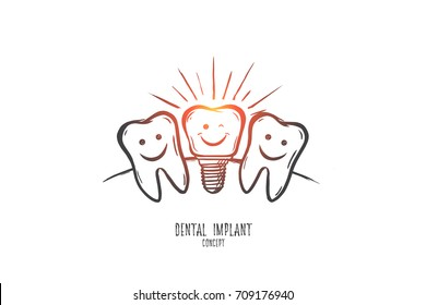 Dental implant concept. Hand drawn dental implant model. Implant tooth isolated vector illustration.