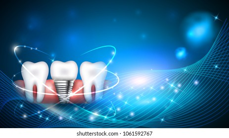 Dental implant and healthy teeth scientific modern design on a beautiful glowing background