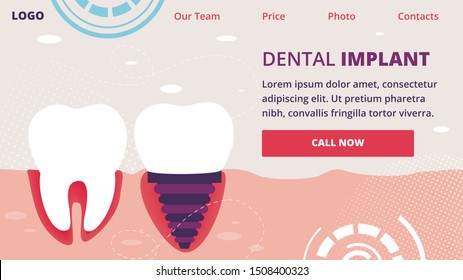 Dental Implant Horizontal Banner. Healthy Tooth and Implanted Structure with All Parts as Crown, Abutment, Screw in Human Jaw. Stomatology Orthodontics Procedure. Cartoon Flat Vector Illustration