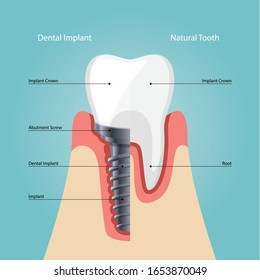 Dental Implant and Human teeth, Vector illustration. tooth