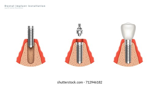 Dental implant installation stages. 3d realistic illustration. Eps10 vector.