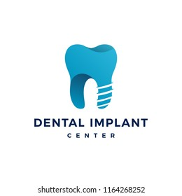 dental implant logo teeth tooth vector icon