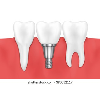 Dental implant and normal tooth. Stomatology prosthesis, implantation. Vector illustration