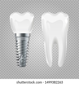 Dental implant. Realistic healthy tooth and implant. Vector dental surgery elements