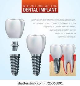 Dental implant vector illustration - humant teeth medical infographic poster