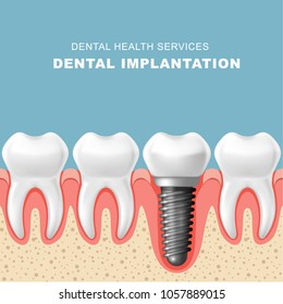 Dental implantation - row of teeth in gum with implant