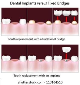 Dental implants versus fixed bridges