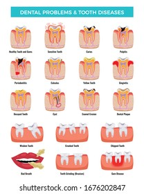 Dental oral problems educational infographic set with caries inflammation tooth plaque bad breath enamel erosion vector illustration