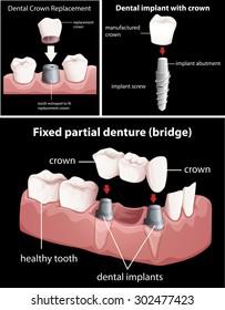 Dental procedures on black illustration