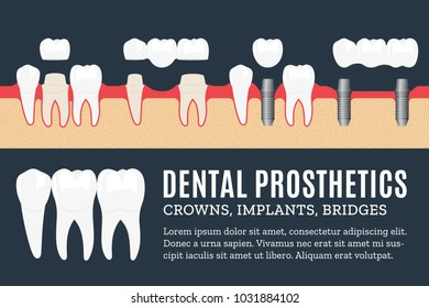 Dental prosthetics illustration. Implant, crown and bridge icons.