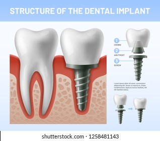 Dental teeth implant. Implantation procedure or tooth crown abutments. Health care or fractured dent implanted teeth. Crowns veneers prosthesis treatment dentistry vector illustration