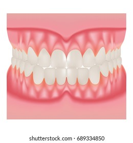 Dentures With White Teeth, Dentition The Gums Of The Upper And Lower Jaw, The Bite In Occlusion Isolated On A White Background. Vector Illustration. Stomatology. Teeth And Tooth Concept Of Dental