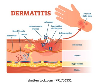 Dermatitis flat vector illustration diagram with skin layers and allergen movement. Educational medical information.