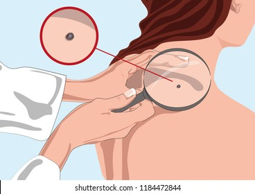 Dermatologist examining mole with magnifying glass in clinic (skin cancer)