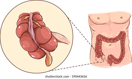 with detail of an appendicitis