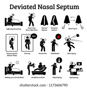 Deviated nasal septum icons. Illustrations depict signs and symptoms of nose problem. Difficulty breathing, sinus infection, snoring, and facial pain. Treatments are nasal spray and septoplasty.
